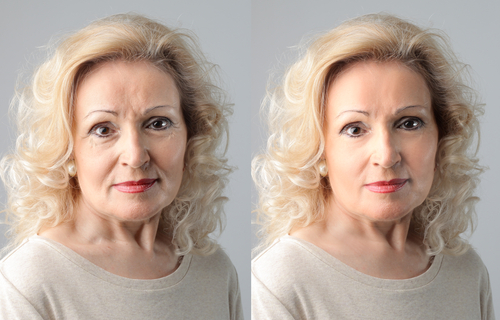 The before and after pictures of a women who had a facial rejuvenation procedure