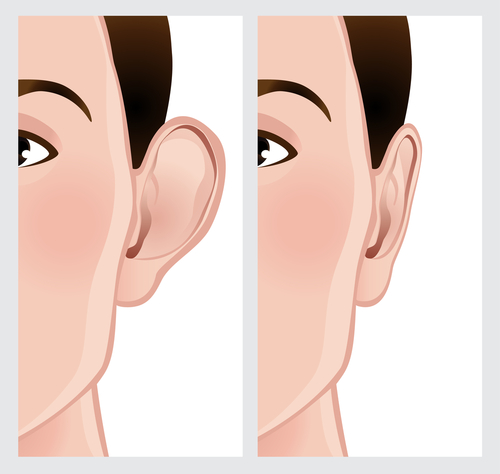 Drawing of before and after ear surgery