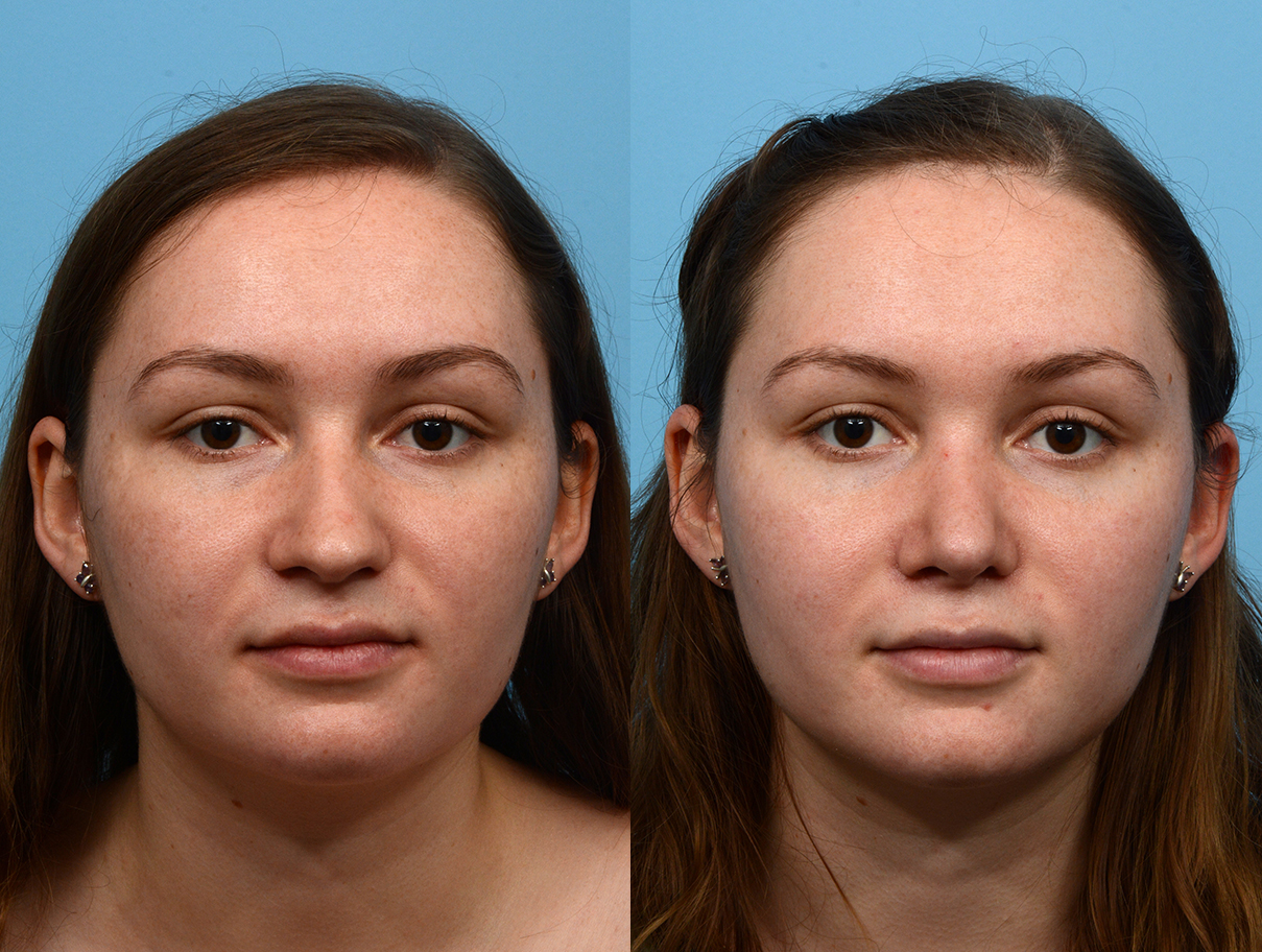 Rhinoplasty Before And After Dr Jeffrey Wise