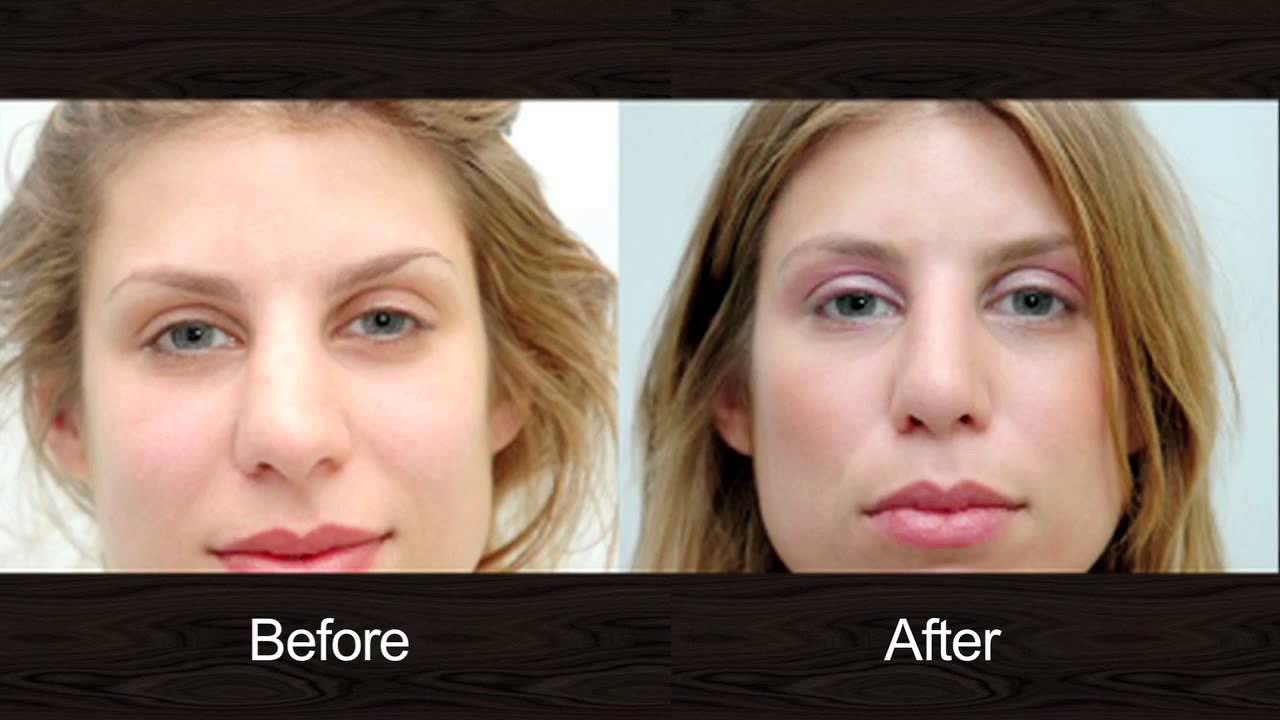 Rhinoplasty in New Jersey