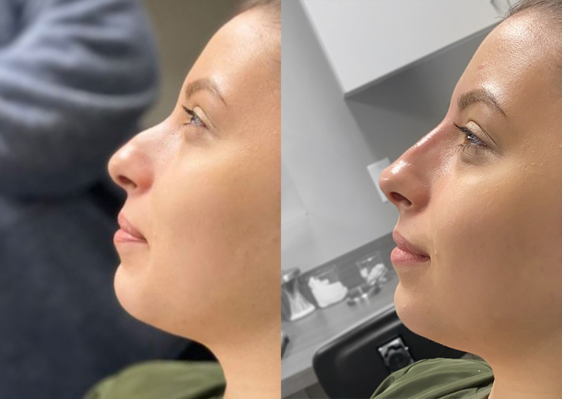 Non Surgical Rhinoplasty Nj Injectables Nose Job